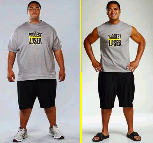 Biggest Loser' Star Suffers Serious Fall