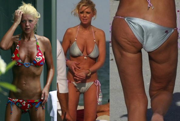 Worst Celebrity Bikini Bodies Of 2011 (Porpoise Sightings)