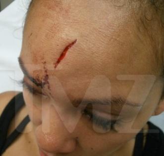 Evelyn Lozada injury