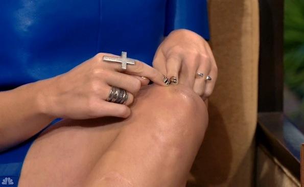 katy perry knee