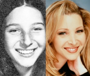 Lisa kudrow nose job before and after