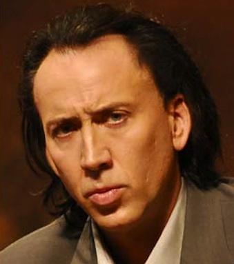 Nicolas Cage receding