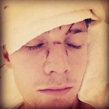 Barron Hilton beat up