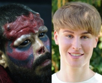extreme plastic surgery red skull justin bieber
